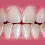 Clareamento dental - Antes