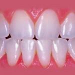 Clareamento dental - Depois