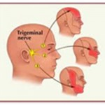 Áreas da face inervadas pelas 3 ramificações do nervo trigêmeo