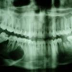 Radiografia panorâmica: imagem radiolúcida do lado D mostra extensa lesão osteolítica associada à reabsorção dentária, sugestivo de AMELOBLASTOMA