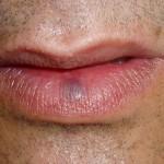 Varicosidade labial - Antes