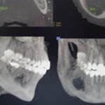 Tomografia computadorizada: revela caráter destrutivo e dimensões da lesão óssea