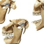 Vista lateral de articulação temporomandibular em diferentes posições da mandíbula