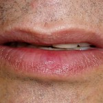 Varicosidade labial - Após
