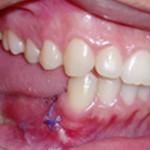 Aspecto após a remoção da lesão (e parte da mandíbula), realizada sob anestesia geral