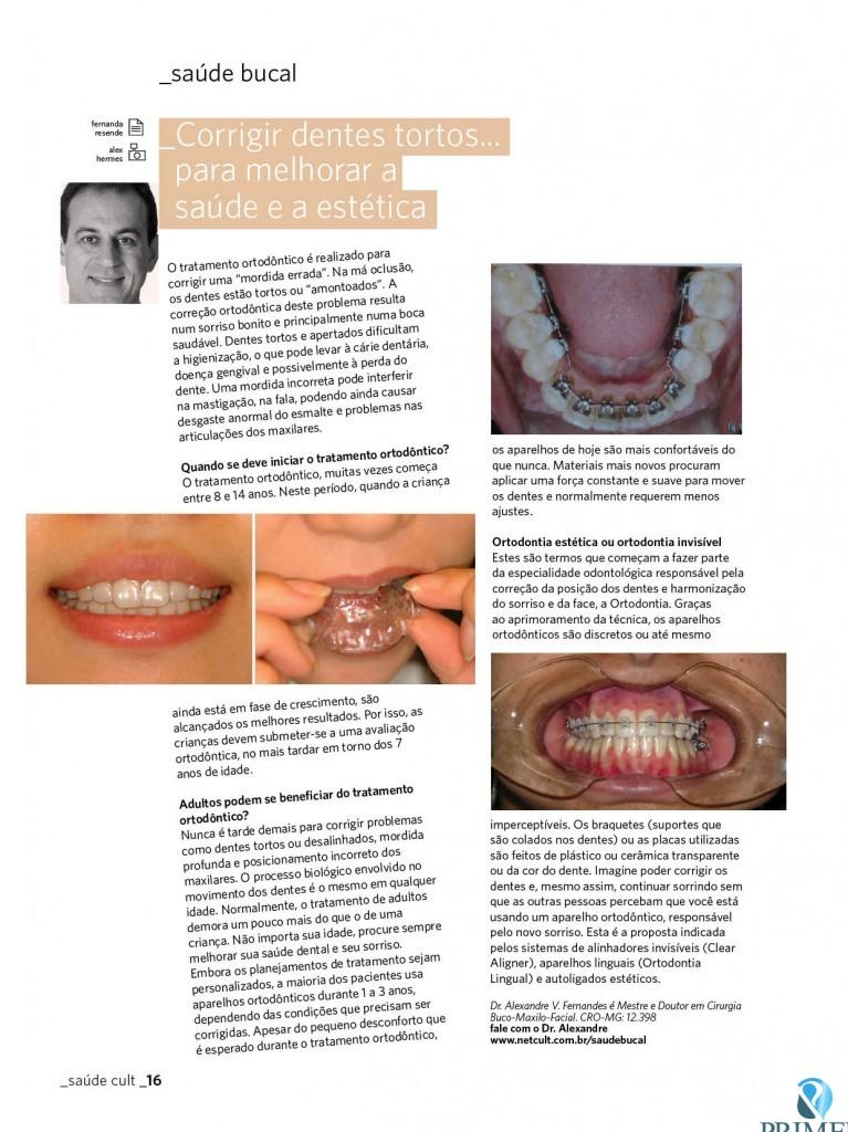 Cult 75 – Corrigir dentes tortos para melhorar a saúde e a estética