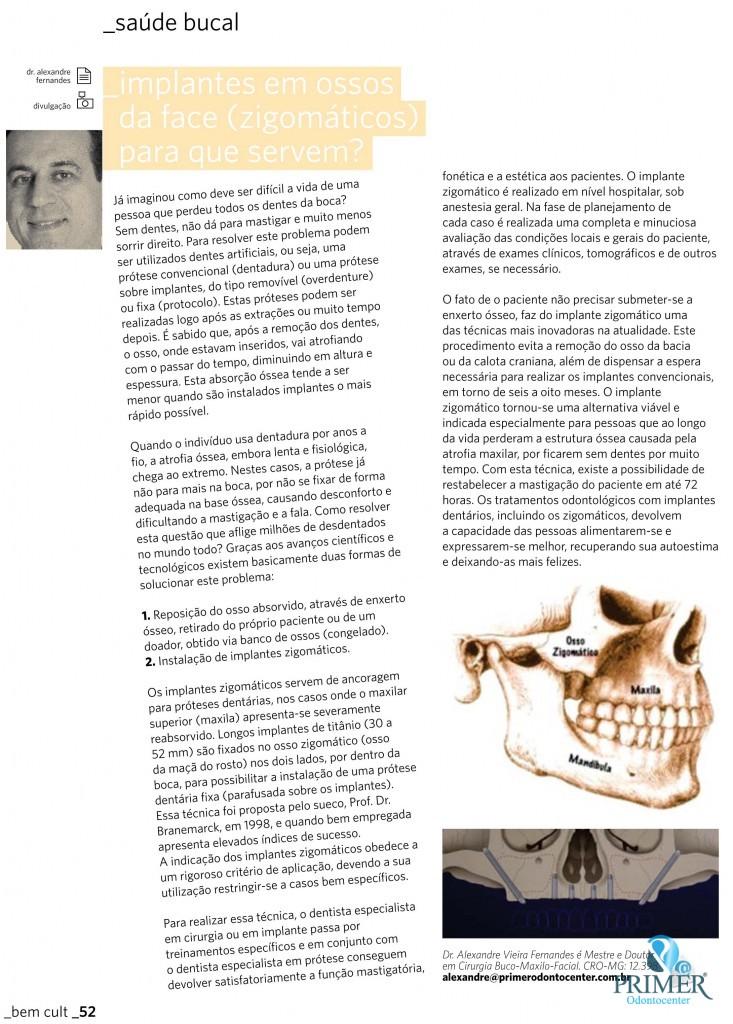 Cult 81 – Implantes em ossos da face (Zigomáticos) para que servem?