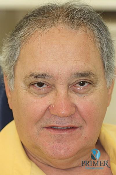 João Batista Carvalho