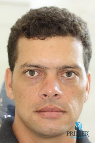 Rones Gonçalves