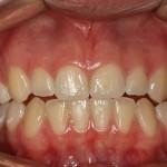 Dentes antes