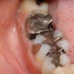 Dente 47 com extração indicada