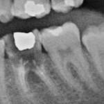 Dente 38 com raiz em formação