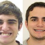Rosto antes e depois