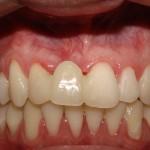 Enxerto com osso de banco e implante - Antes