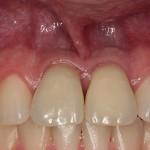 Dentes depois