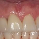 Coroa de porcelana sobre implante