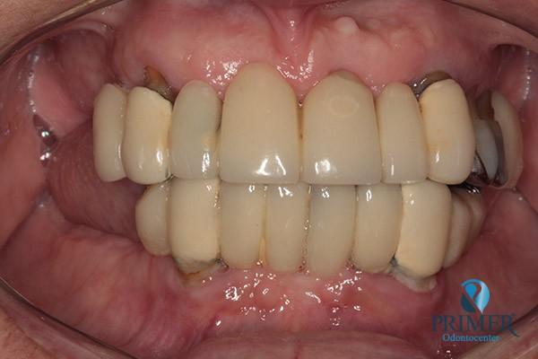 60b2f5e54737 Prótese dentária   Primer Odontocenter