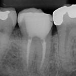 Radiografia - 4 anos após