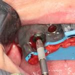 Instalação guiada do implante