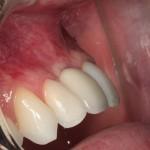 Prótese sobre implante na região enxertada