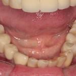 Prótese sobre Implantes instalados na região do enxerto em bloco